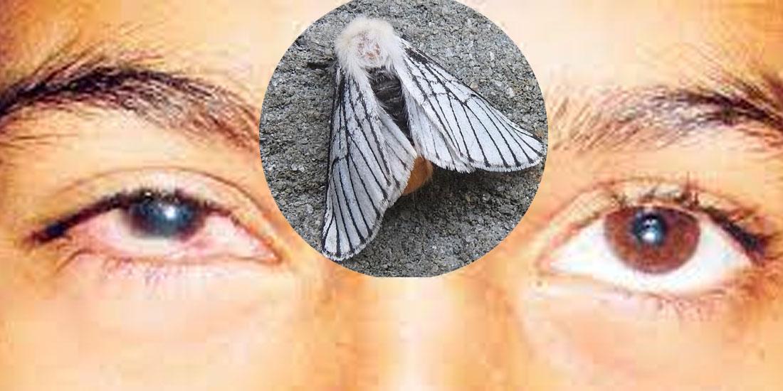 आँखाको ज्योति गुम्न सक्ने शापूको संक्रमणबाट सचेत रहन विशेषज्ञको आग्रह